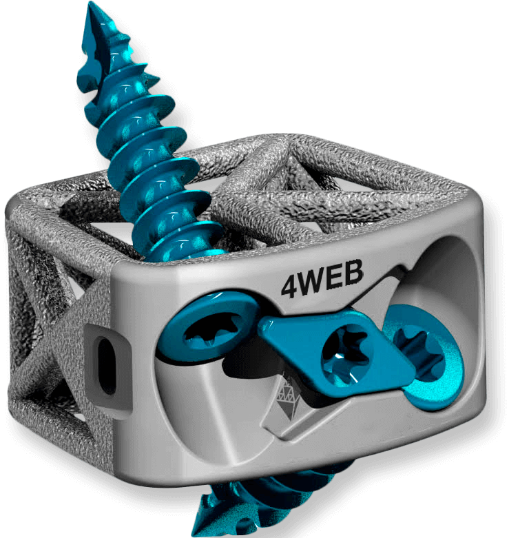 Stand Alone Cervical Spine Truss System